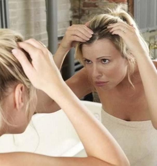 Как убрать перхоть с волос в домашних условиях