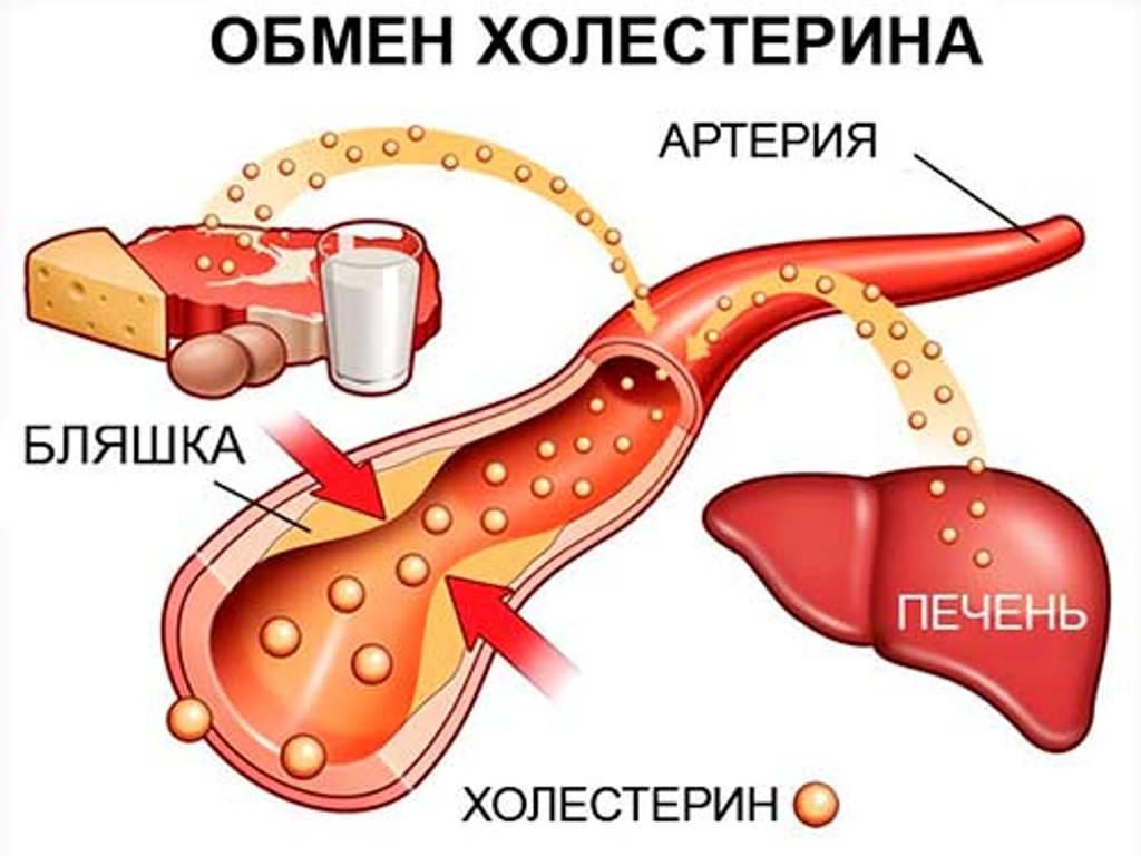 высокий холестерин при гипотиреозе